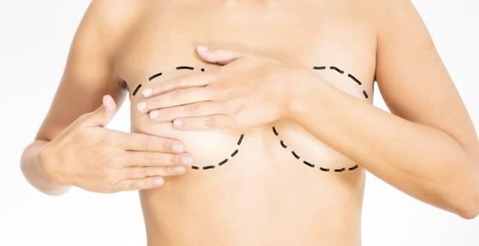 Göğüs Estetiği Yaptırırken Nelere Dikkat Etmeliyiz?