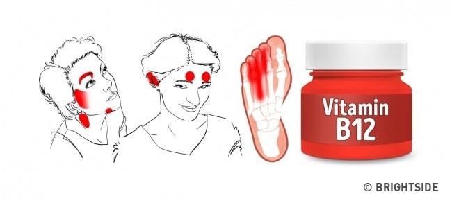 Vitamin Eksikliğinin Yüzünüzdeki 6 Belirtisi