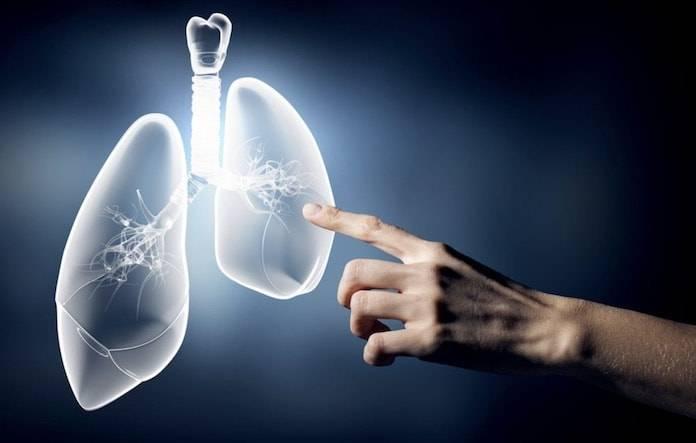 Akciğer Kanserinin Belirtileri ve Nedenleri Nelerdir?