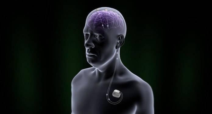 beyin pili