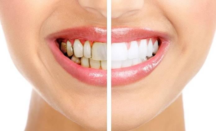 Dişlerinize Zarar Veren 9 Alışkanlık