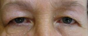 Gözleriniz Sağlığınız Hakkında Neler Söylüyor?