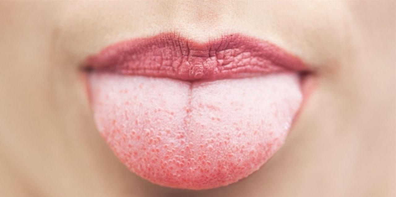 Klamidya: belirtiler, tanı, tedavi